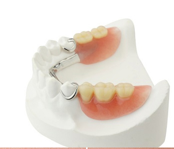 Dr. Stanley Friedell, Piedmont residents search for affordable partial dentures