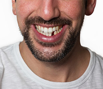 Dr. Stanley Friedell, Yadkinville NC dentist offers superior way to replace missing teeth with dental implants