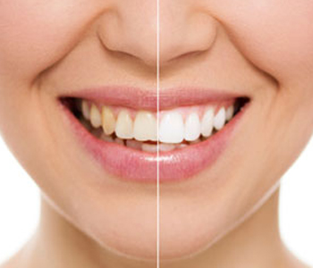 Dr. Stanley Friedell, Adult patients in Yadkinville benefit from a range of cosmetic dentistry procedures