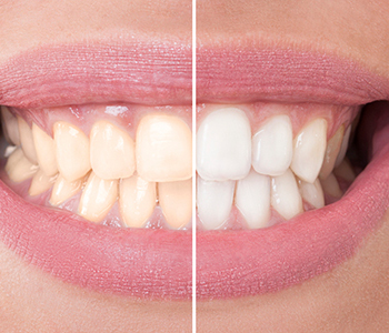 Dr. Stanley Friedell, Yadkinville dental team provides powerful yet gentle cosmetic teeth whitening results in a single visit
