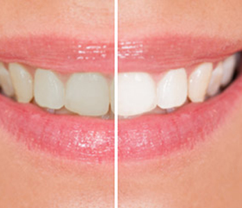 Dr. Stanley Friedell, Is your tooth turning grey? Piedmont NC area dentist restores brilliance with lifelike crown