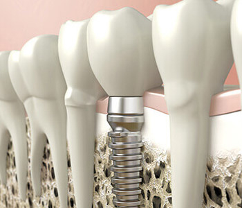 Dr. Stanley Friedell, Piedmont, NC area dentist relieves cost anxiety associated with dental implants
