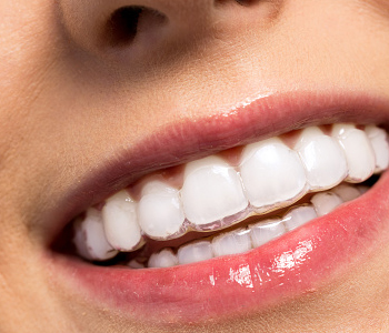 Dr. Stanley Friedell, North Carolina dentist helps patients get straighter teeth in no time with Six Month Smiles