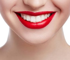Perfect Teeth with Dental Veneers at Winston-salem