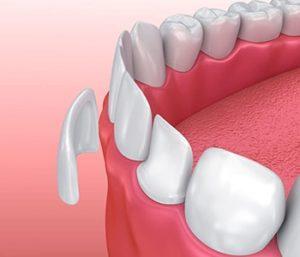 Image of Dental Veneers