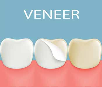 Veneers are an ideal cosmetic solution with minimal compromise of the natural tooth.
