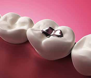 Patients in Yadkinville seeking a dentist near me that offers mercury safe fillings can contact Virtue Dental Care.