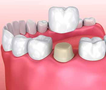 Dr. Stanley Friedell, What is mercury safe dentistry near Kernersville, NC?