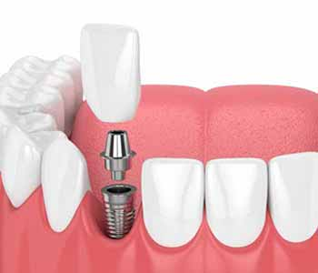 At Virtue Dental Care, recommend dental implants for many patients near the Charlotte, NC