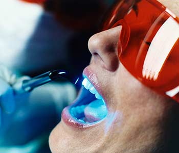 Dentist Near in Charlotte area Explains the Benefits of Ozone Therapy