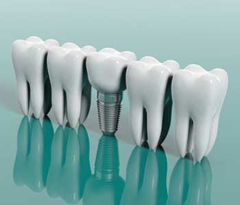 Dental Implants Treatment in, Yadkinville NC area