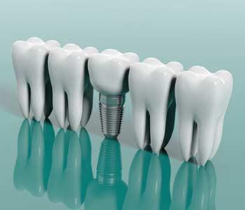 Dental Implants Treatment in, Yadkinville NC area