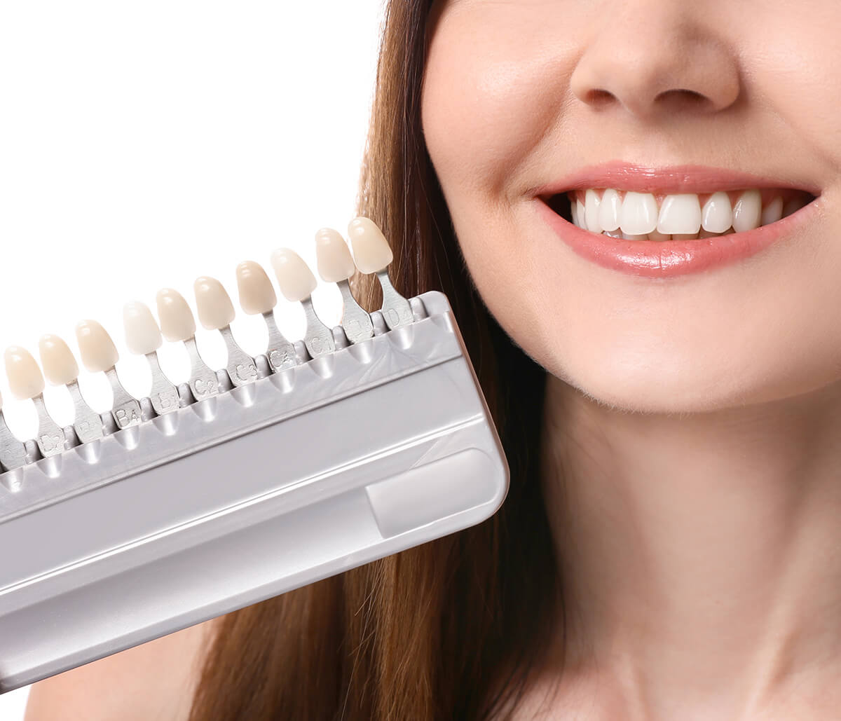 Cosmetic Porcelain Veneers at Virtue Dental Care in Yadkinville Area