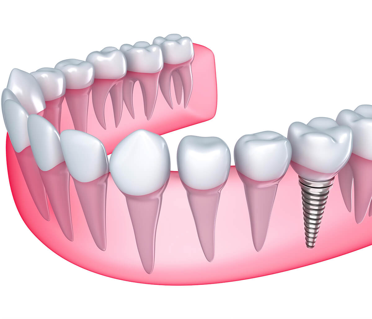 Replace Your Missing Teeth with Dental Implants Treatment in Yadkinville Area