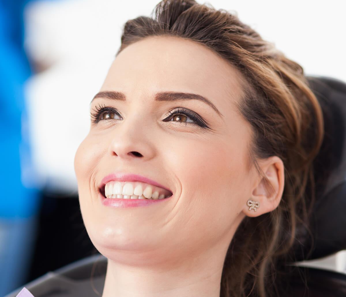 What Should You Know About CEREC Crowns in Yadkinville NC Area?
