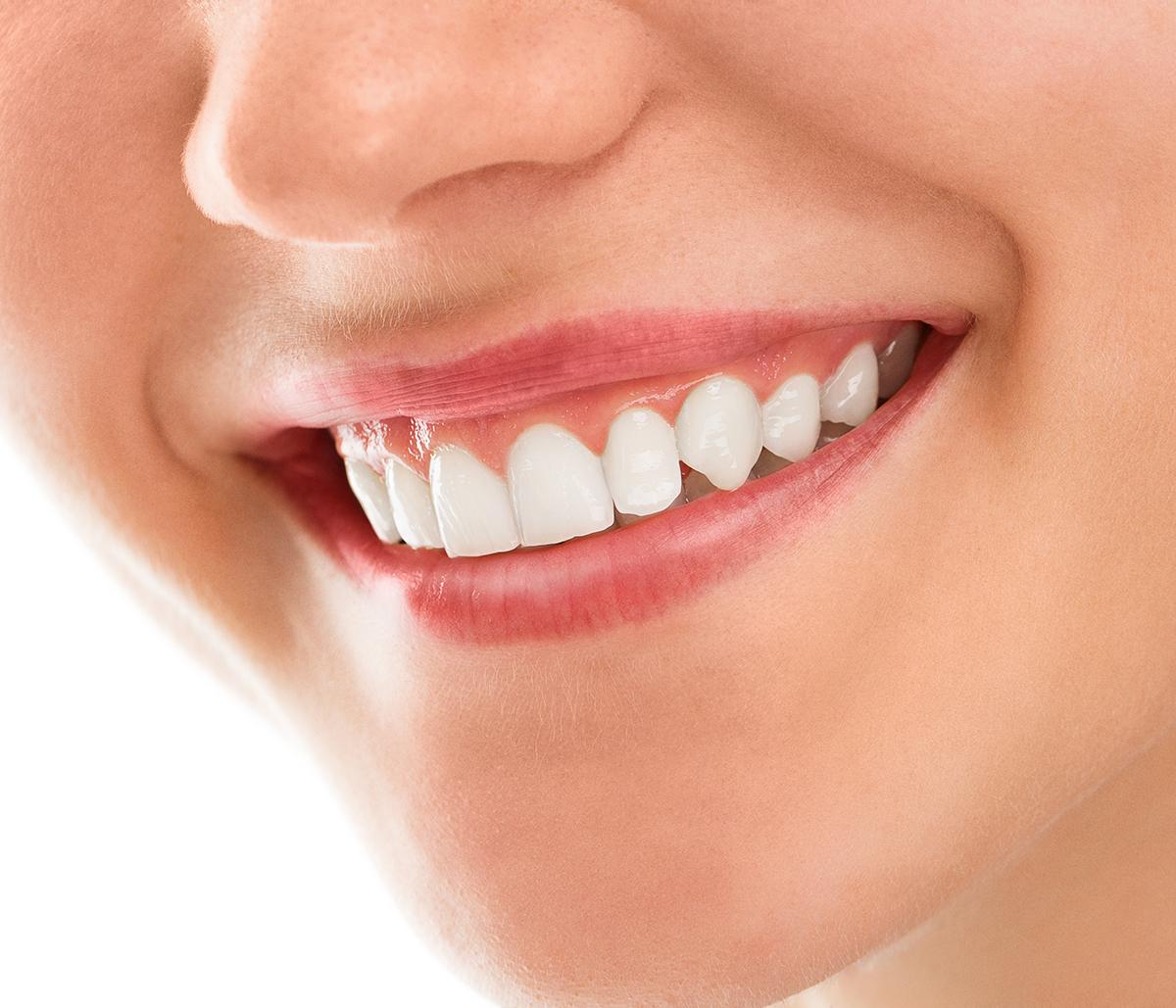 Benefits of Dental Restoration