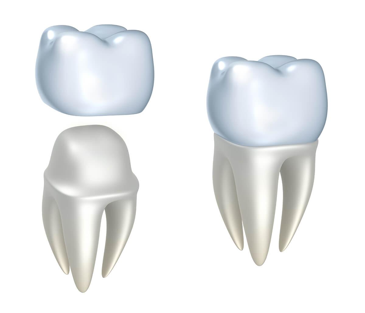 CEREC Crowns Dentist at Virtue Dental Care in Yadkinville NC Area