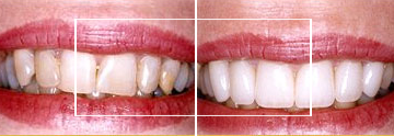 Dr. William E. Virtue DDS, NMD, at Virtue Dental Care Before After case 01