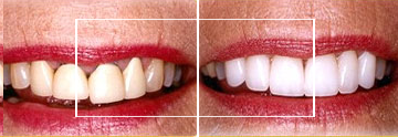 Dr. William E. Virtue DDS, NMD, at Virtue Dental Care Before After case 02