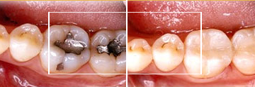 Dr. William E. Virtue DDS, NMD, at Virtue Dental Care Before After case 03
