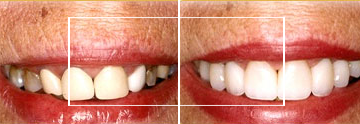 Dr. William E. Virtue DDS, NMD, at Virtue Dental Care Before After case 04
