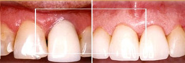 Dr. William E. Virtue DDS, NMD, at Virtue Dental Care Before After case 05