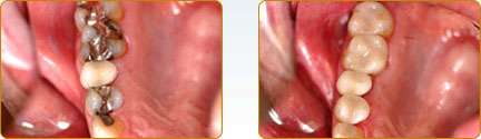 CEREC Porcelain Crowns Yadkinville - Before and after 7