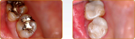 CEREC Porcelain Crowns Yadkinville - Before and after 8