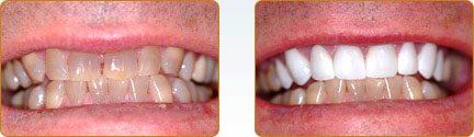 Smile Gallery Yadkinville - Before and after 23