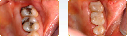 CEREC Porcelain Crowns Yadkinville - Before and after 15
