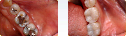 CEREC Porcelain Crowns Yadkinville - Before and after 16