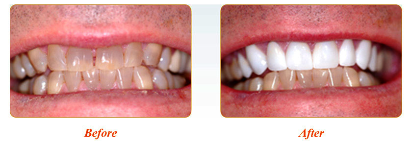 Smile Gallery Yadkinville Before And After 23