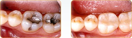 Porcelain Crowns Yadkinville - Before and after 19