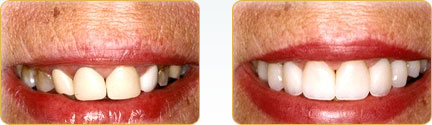 CEREC Porcelain Crowns Yadkinville - Before and after 25