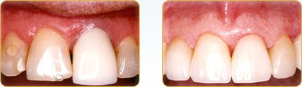 CEREC Porcelain Crowns Yadkinville - Before and after 24