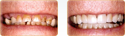 CEREC Porcelain Crowns Yadkinville - Before and after 23