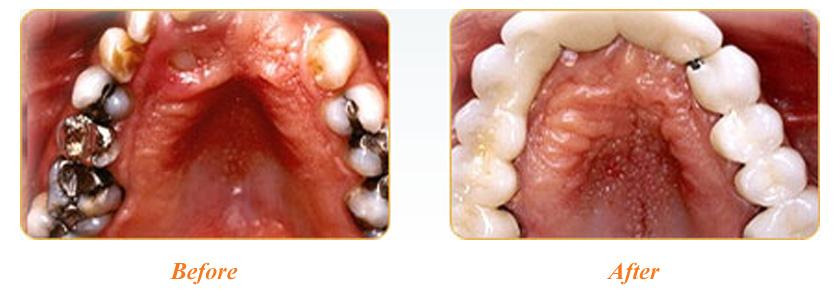 Mercury Safe Dentistry Yadkinville Mercury Safe Dentist