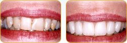 Dentist Yadkinville - Before and after 01