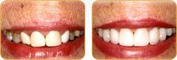 Dentist Yadkinville - Before and after 04
