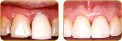 Dentist Yadkinville - Before and after 05