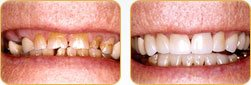 Dentist Yadkinville - Before and after 07