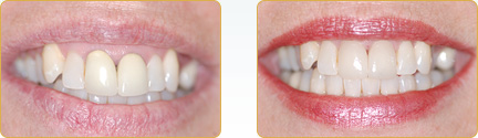 Smile Gallery Yadkinville - Before and After Veneers 10
