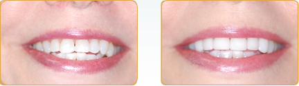 Veneers Yadkinville - Before and After Veneers 11