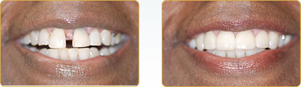 Veneers Yadkinville - Before and After Veneers 12