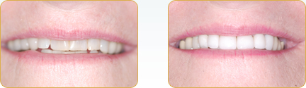 Veneers Yadkinville - Veneers Before After Case 14