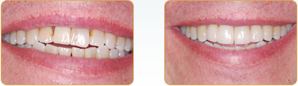Smile Gallery Yadkinville - Veneers Before After Case 16