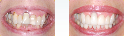 Smile Gallery Yadkinville - Before and After Veneers 5