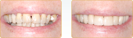 Smile Gallery Yadkinville - Before and After Veneers 7