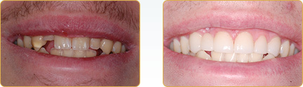 Smile Gallery Yadkinville - Before and After Veneers 8