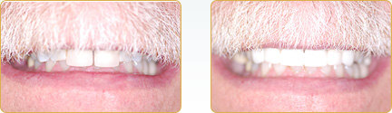 Smile Gallery Yadkinville - Before and After Veneers 9